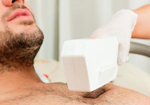 fotodepilacion laser para el cuerpo alicante hojory